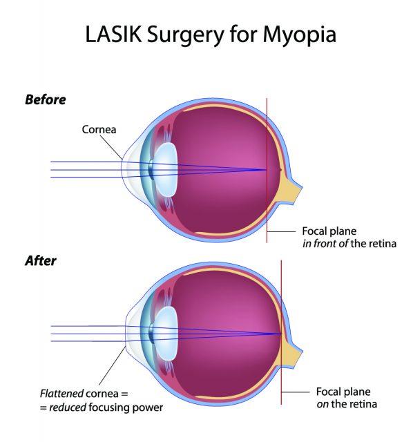 Lasik Surgery for Myopia